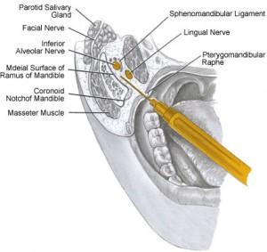 lingual nerve injury